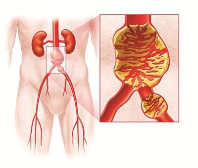 Khám bệnh phình động mạch chủ bụng ở người cao tuổi gồm những hạng mục nào?