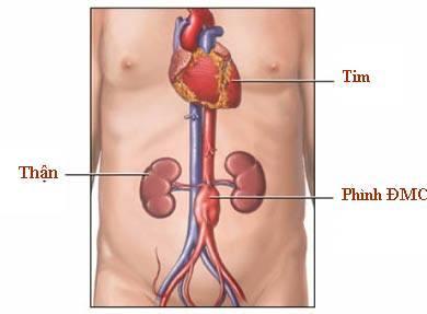 Bệnh phình động mạch chủ bụng ở người già nguyên nhân như thế nào?