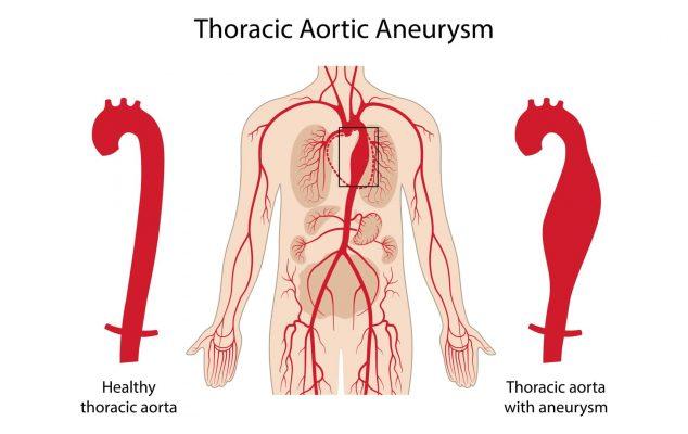 Chứng Phình động mạch chủ có thể gây ra những bệnh gì?