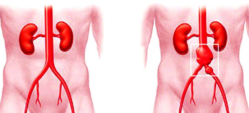 Nguyên nhân của chứng phình động mạch chủ như thế nào?