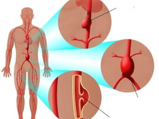 Nguyên nhân của chứng phình động mạch mạc treo tràng?