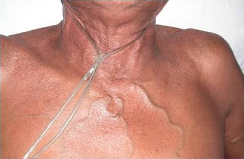 Các triệu chứng của Hội chứng chèn ép tĩnh mạch chủ ở người già là gì?