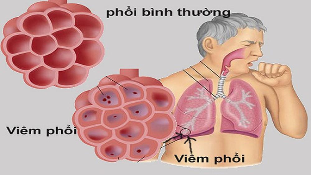 nguyên nhân viêm phổi